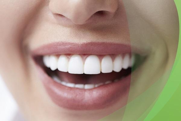 Акция. Отбеливание зубов с ZOOM 4