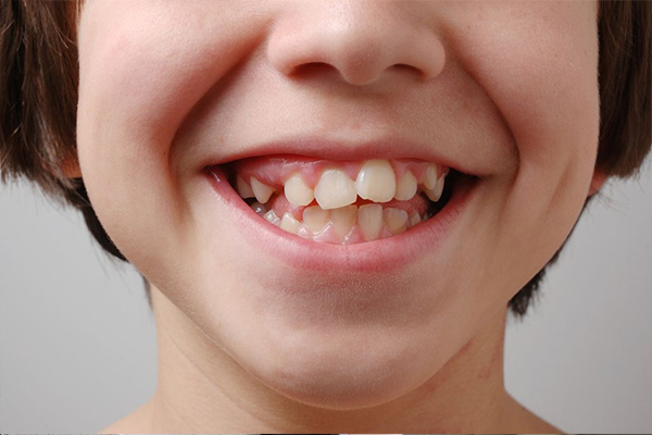 Аномалии положения, формы и размера зубов