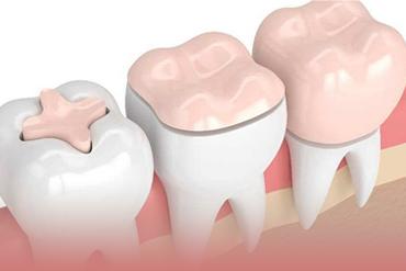 Восстановление зуба керамической вкладкой